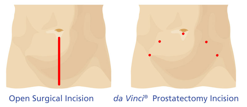 Img046_Incision_Comparison_Prostatectomy